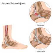 peroneal tendon injuries - stock illustration