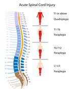 Spinal cord injury levels Stock Illustration