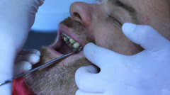 Dentist - Dental implant Stock Footage