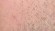 Shaved Hair Closeup / Human Body Part Stock Footage