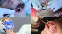 Dentist - Patients open mouth during oral checkup Stock Footage