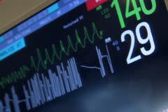 Warning Hospital Monitor NTSC Stock Footage