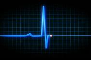 Stock Video Footage of EKG Flatlines NTSC