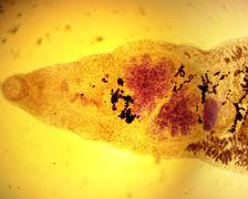 Lancet liver fluke (Dicrocoelium dendriticum) - permanent slide plate Stock Photos