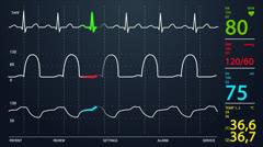 601 Electrocardiogram 002 HD - stock footage