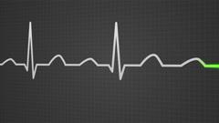601 Electrocardiogram 005 B HD Arkistovideo