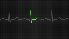 601 Electrocardiogram 006 A HD Stock Footage