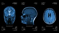 Stock Video Footage of Head MRI scan. Loopable. Blue.