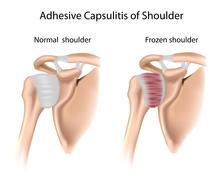 Adhesive capsulitis of shoulder Stock Illustration