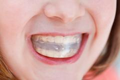 correction of occlusion by orthodontic trainer - stock photo
