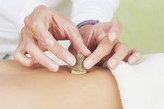 Germany, Frechen, Therapsit placing moxa and ginger root on tummy of patient Stock Photos