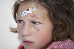 Germany, Bavaria, Wounded girl sitting on road after bicycle accident, close-up Stock Photos