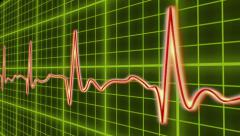 EKG cardio heart beat, normal and zero pulse with audio, click for HD Stock Footage