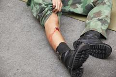 Gunshot wound Stock Photos