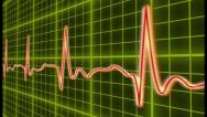 Stock Video Footage of EKG cardio heart beat, normal and zero pulse with audio, click for HD