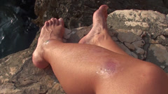 Scar marks on leg Stock Footage