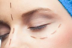Extreme close up on relaxed patient with dotted lines on the face - stock photo