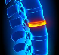 Disc Degeneration - Spine problem - stock photo