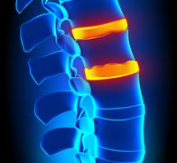 Osteophyte Formation Disc Degeneration - Spine problem - stock photo