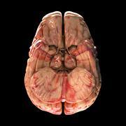 Anatomy Brain - Bottom View on Black Background - stock photo