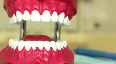 Dental treatment on the example of the toy jaw Stock Footage