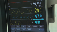 Heart Monitor ECG coronary angiography Stock Footage