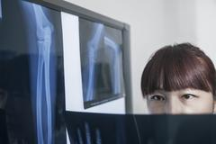 Female doctor looking at x-ray of human bones - stock photo
