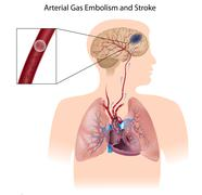 Arterial gas embolism and stroke Stock Illustration