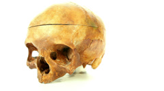 Stock Video Footage of Human skull old cranium