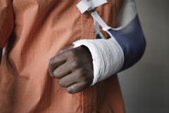 Man With Broken Arm In Cast - stock photo