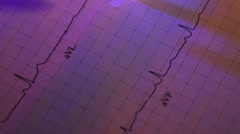 ecg heart monitor readout and a syringe - stock footage