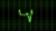 Stock After Effects of ecg