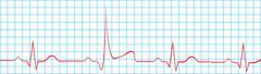Heart Attack Stroke On Electrocardiogram - stock illustration