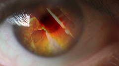 Fire in the eye Stock Footage