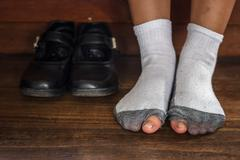 worn out dirty socks with a hole and toes. - stock photo