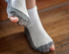 worn out socks with a hole and toes. - stock photo