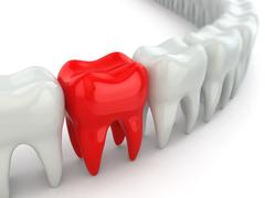 aching tooth in row of healthy teeth. - stock illustration