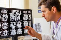 Doctor examining an mri scan of the brain Stock Photos