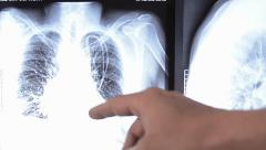 Doctor examining x-ray image of human chest Stock Footage