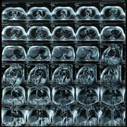 Magnetic resonanse image - stock photo
