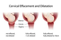 cervical effacement and dilatation - stock illustration
