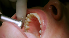 Polishing Dental Inlays Stock Footage