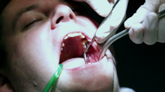 Close shot of dentist trying to fix clients teeth with his dental tools Stock Footage