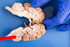 Longitudinal cross-section of a cow brain Stock Photos