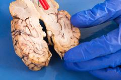 Cross-section of a cow brain Stock Photos