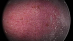 Blood Vessel Cancer Zoom In Through Dusty Lens Stock Footage
