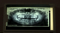 Large Dental X Ray on Screen - stock footage