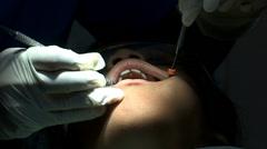 Dental Work Stock Footage
