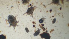 Ear Mite Infestation - stock footage