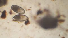 Ear Mite Eggs Stock Footage